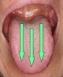 tonguecare01