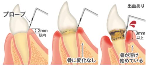 periodontal_img